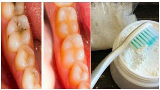 dientes blanquear