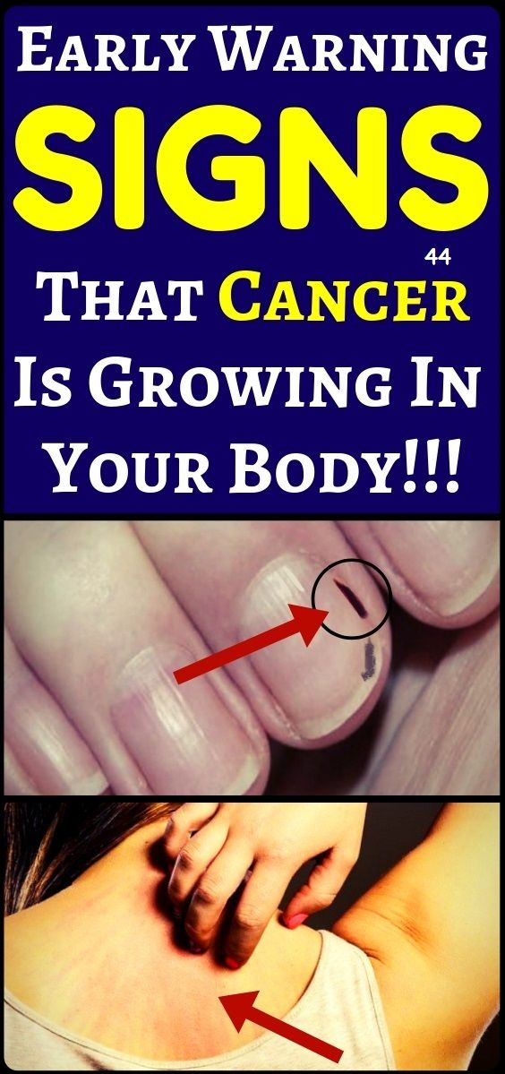 5 Early cancer symptoms you shouldn't ignore…….