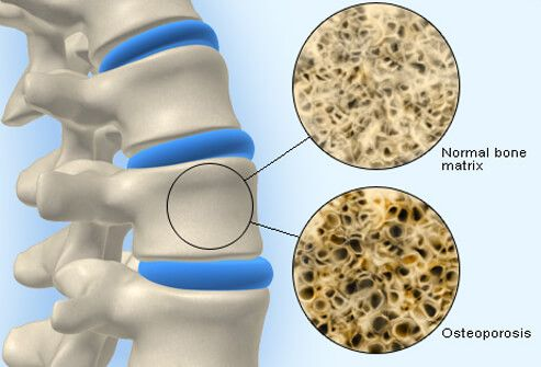 Osteoporosis and Calcium Causes, Symptoms, Treatment - What Impairs the Absorption of Calcium? - eMedicineHealth