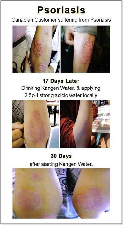 Psoriasis care with Kangen water