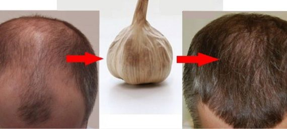 Hair loss is a problem that many people suffer with. For men, it is often associated with simply growing older and having a genetic predisposition toward male pattern baldness. For women, it can be another matter altogether, and it is important to tackle the root of the problem. Garlic And Hair Growth – The Research […]