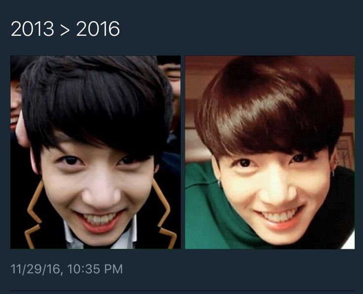 When u think he grow up .. but then u see this bunny smile