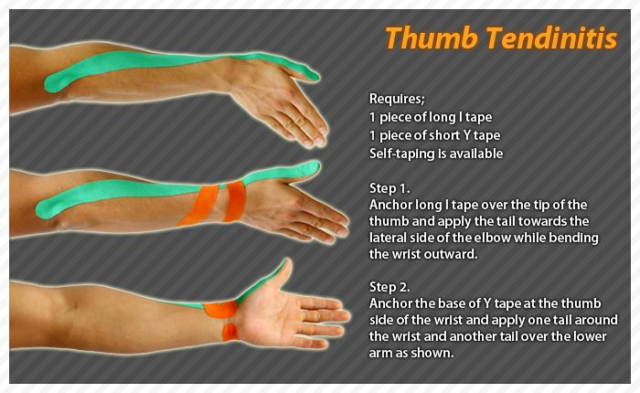 "De Quervain's tendinitis occurs when the tendons around the base of the thumb are irritated or constricted. The word ""tendinitis"" refers to a swelling of the tendons. Thickening of the tendons can cause pain and tenderness along the thumb side of the wrist. #Ares #Tape #Kinesiology #Taping"