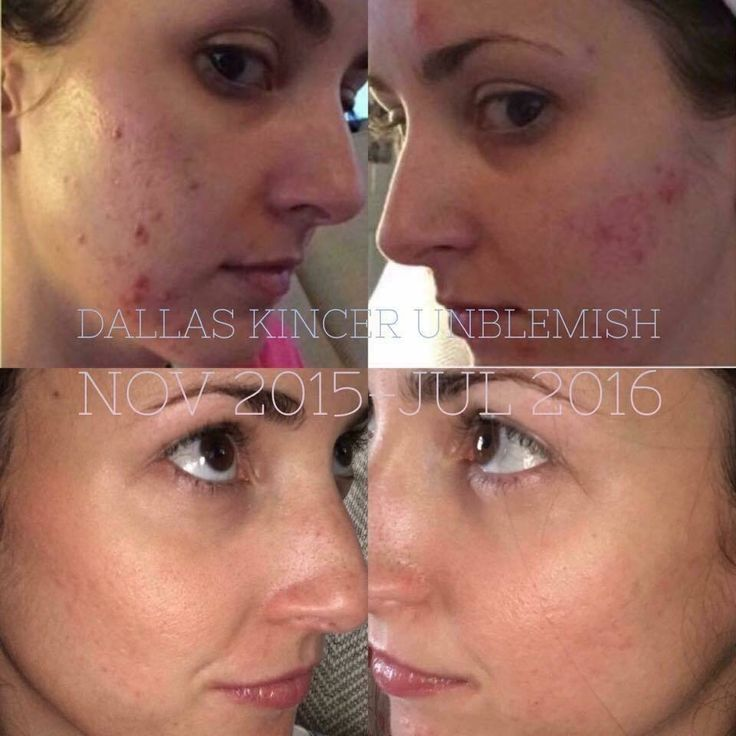 You no longer need to suffer with acne and /or acne scares! 60 day empty bottle guarantee. hrrp://dmetcalf3.myrandf.com