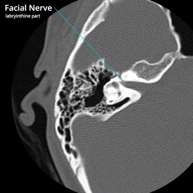 Facial nerve anatomy - labeled CT | Radiology Case | Radiopaedia.org