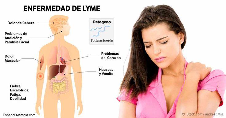 """La enfermedad de Lyme--que se denominó por primera vez como """"artritis de Lyme""""--es difícil de diagnosticar debido a su capacidad para imitar a otros trastornos. http://articulos.mercola.com/sitios/articulos/archivo/2017/04/11/enfermedad-de-lyme.aspx"""