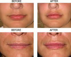 Plastic Surgery Tips, news  ... secrets...   #plastic surgery #cosmetic surgery ....:::::::....  Plastic Surgery Tips, news ... secrets... #plasticsurgery #cosmeticsurgery #plasticsurgerybeforeandafter #celebrityplasticsurgery
