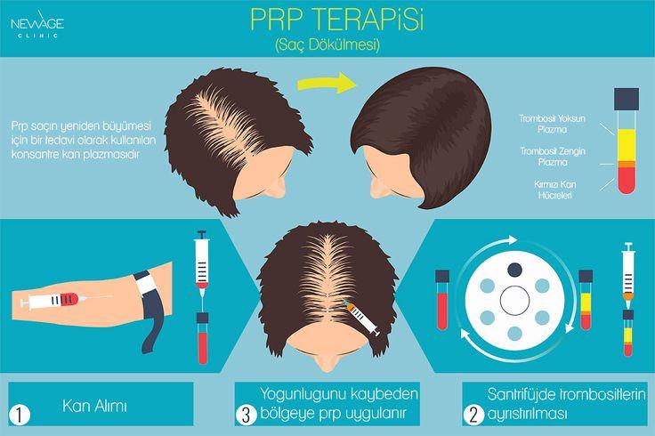PRP tedavisi ile elde etmeye çalıştığımız sonuç, dökülmeye yüz tutmuş, zayıflamış saç köklerinin canlandırılmasıdır. PRP kullanılan hastalarda saç dökülmesinin azaldığı, uygulanan bölgede saç tellerinin kalınlaştığı gözlenmektedir.  /// Daha fazla bilgi için 📲 WhatsApp: 0090543 470 47 09 ///  #saçdökülmesi #sacdokulmesi #sacekimi #saçekimi #prptedavisi