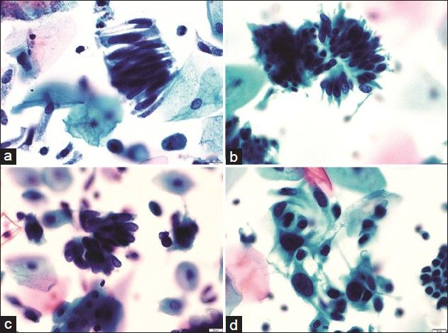 Figure 3: A panel of microphotographs of SurePath™ liquid-based cytology Pap samples reported as endocervical adenocarcinoma: (a) A pseudo-stratified strip of endocervical cells showing cigar-shaped nuclei (Pap, ×40); (b and c) clusters of endocervical cells showing feathering, nuclear crowding, and snake and egg appearance (Pap, ×40); (d) dispersed population of atypical endocervical cells showing nuclear pleomorphism (Pap, ×40)