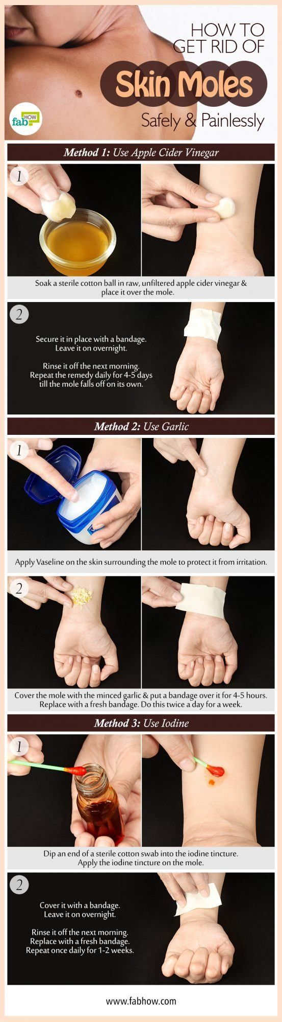 How to Get Rid of Moles Safely and Painlessly with Garlic, ACV Remedy