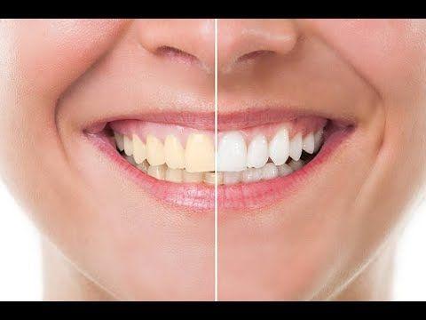 Whiten Teeth In Photoshop With Urdu Language 2018 Arslan Editz