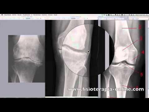 Artrosis de rodilla. Signos radiológicos.