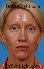 Laser Skin Rejuvenation | Light Facial Plastic Surgery