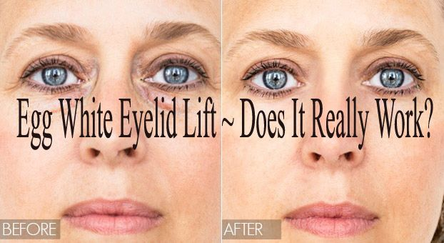 Egg White- A Natural Remedy for Drooping Eyelids or Hooded Eyes Egg whites are effective in making your skin tighten and firm. After applying an egg white on your eyelieds, you will see results in a few minutes and sometime the results have lasted for two days from the applying day. The result is really …