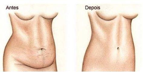 Receita de bebida caseira para perder peso rapidamente e diminuir a cintura. Veja agora como s efaz e como tomar.
