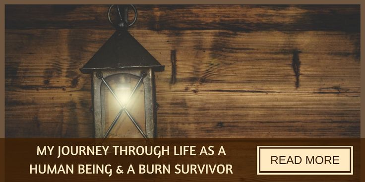 Kenny Matthews shares not only what it is to live as a burns survivor, but as a human being.