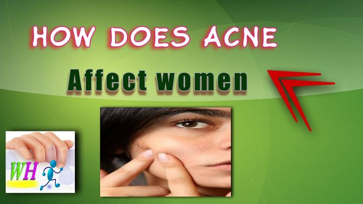 How does acne affect women,how to get rid of acne overnight, forehead acne