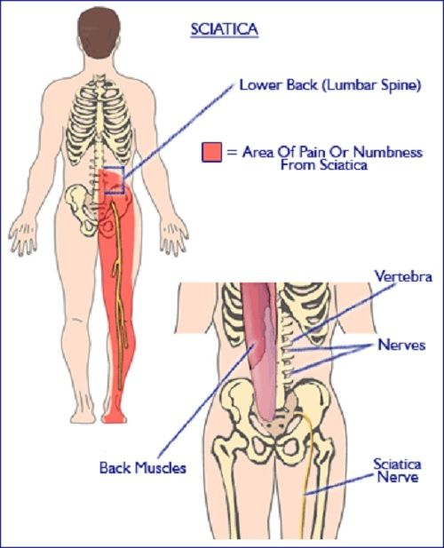 Aching Legs - Causes and Treatment | i Health Blogger