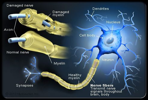 MS and damaged myelin along neurons, disrupting communication and causing damanged nerves