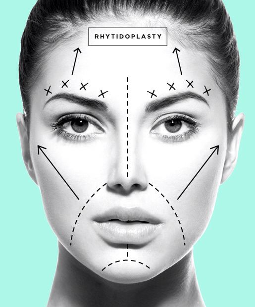 risks of cosmetic surgery pdf