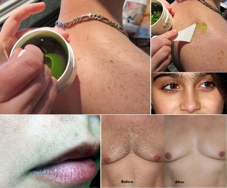 How to Remove Hair Permanently With This Remedy
