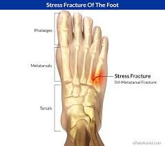 Did you know.. A stress fracture is a small crack in a bone that causes pain and discomfort. It typically affects runners in the shins and feet, and is often due to working too hard before your body gets used to a new activity. If you, or someone you know has a stress fracture then give us a call today to schedule an appointment! 937-228-3668 #podiatry #NationalWalkingMonth Located within the Drew Health Center, 1323 W. Third Street, Dayton, OH 45402 Visit our website at www.RichFeet.org…