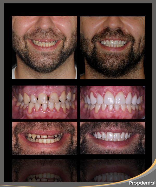 Imagenes de implantes dentales antes y despues de adelgazar