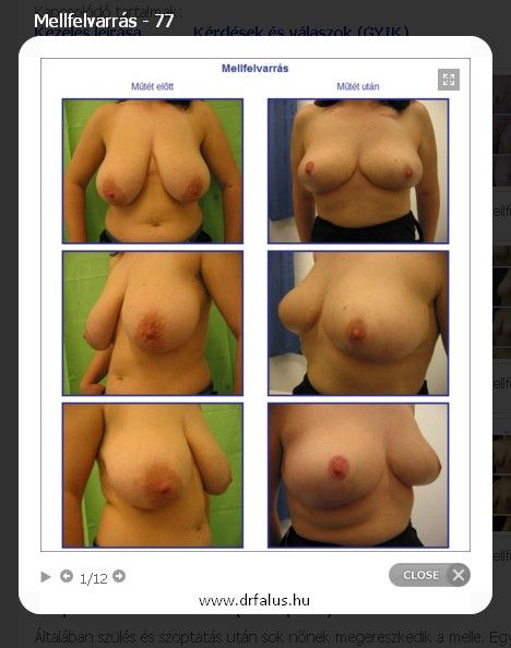 Kíváncsi a mellfelvarrás képekre, de nem tudja hol találhat ilyeneket ? Ne keressen tovább, galériánkban láthat fotókat a műtét előtti állapotról és a műtét befejezése utáni képeket is.