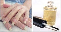 Como estão as suas unhas?Estão frágeis e crescendo lentamente?Não se preocupe.Se não for um problema de saúde mais sério ou carência de nutrientes, a receita que vamos ensinar agora vai resolver o problema facilmente.