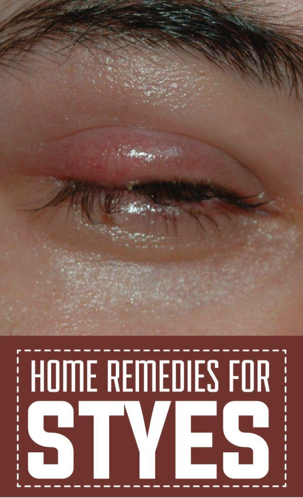 Home Remedies for Styes #styes #eye #health #Beauty