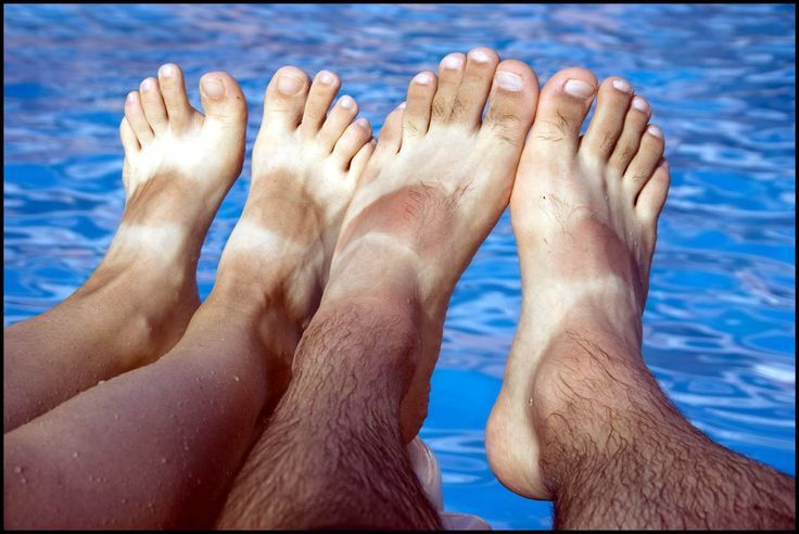 Athlete's foot and Toenail Fungus. How to treat it with Borax.