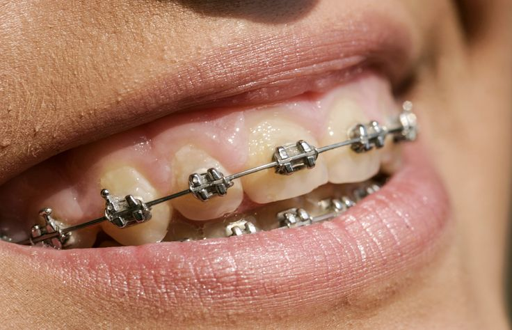 Smile as those repostioned teeth were steel trapped braces....Iconic Australian inventions
