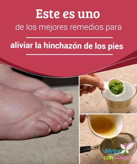 acido urico remedios para el dolor plantas para acido urico alto acido urico gota wikipedia