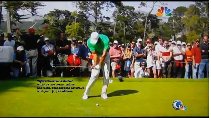 This is #tigerwoods golf swing with his right forearm bones (radius and Ulna) stacked going into impact.  This stacked formation of the right forearm happens naturally at address with the proper grip.