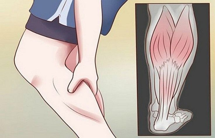 Night Leg Cramps – What Causes Them And How To Prevent Them? » Healthy Life Healthy Food
