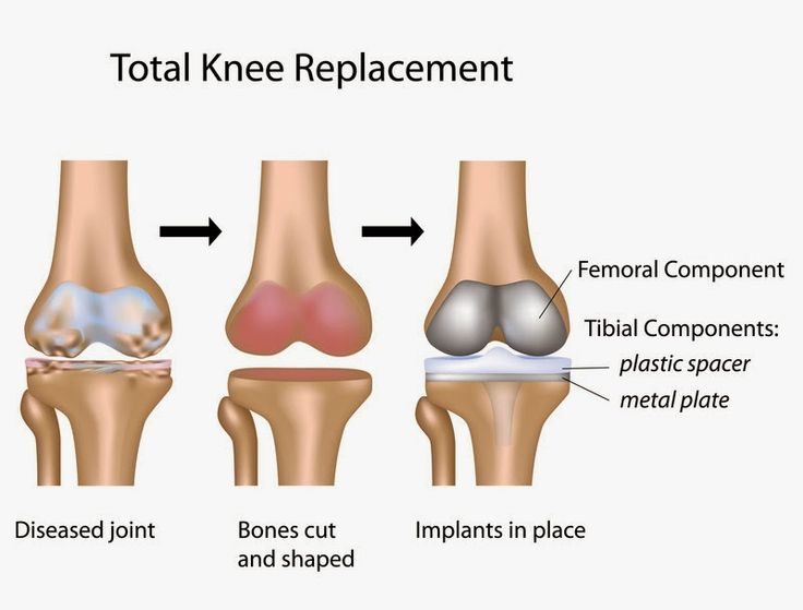 A expert View on TKR By Dr Sachin Gupta ( Gp Shekhawati Hospital & Research Centre.  http://gpshrc.blogspot.in/2015/04/joint-replacement-surgery-step-towards.html