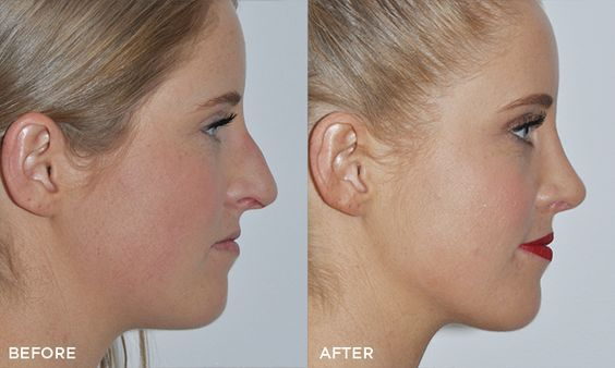 Rhinoplasty surgery after results | Best Rhinoplasty