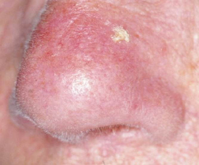Best Natural Treatment For Actinic Keratosis