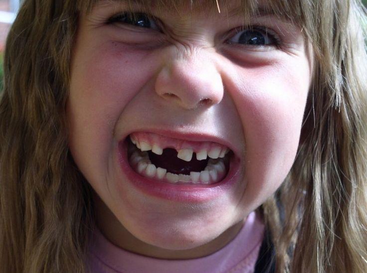 """Quando ela perdeu seu dente de leite, seus pais telefonaram para o """"depósito"""". Porque o que tem dentro dele vale a pena ser preservado. Veja:https://goo.gl/69bxbG"""