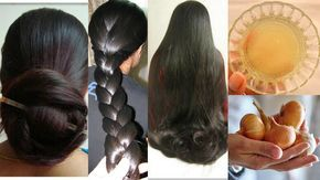 10 Hausmittel für natürlich volles Haar - Zwiebelsaft