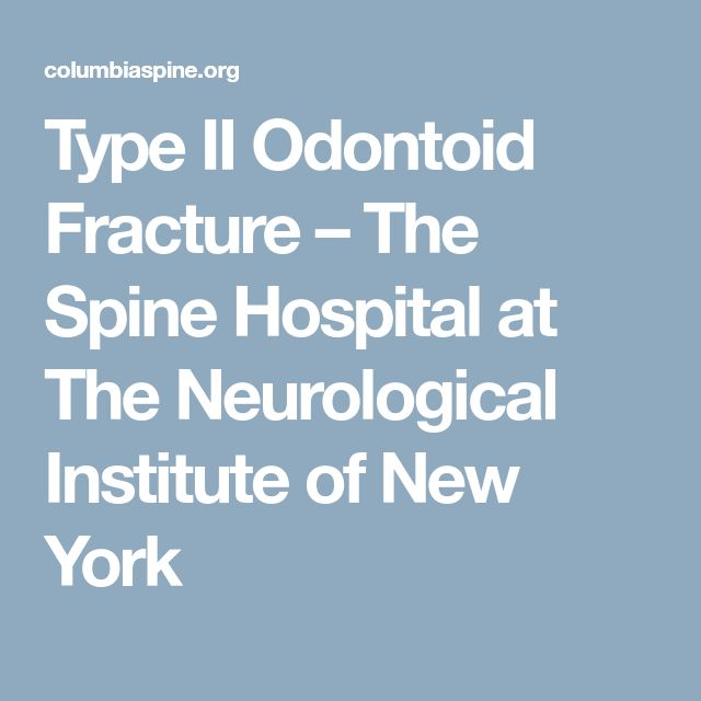 Type II Odontoid Fracture – The Spine Hospital at The Neurological Institute of New York