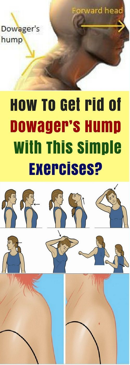 In order to avoid a kyphosis or a hunchback or humpback of the widow, you should proceed in the first place