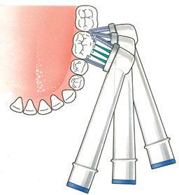 poetsen met een elektrische tandenborstel: houd de borstel een paar seconden stil op de tand en volg de vorm van de tand, zodat je het hele vlak reinigt en daarna ga je door naar de volgende tand