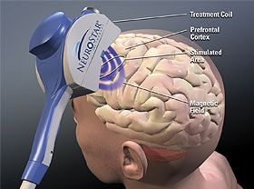 TMS Therapy Shows Long-Term Benefits In Difficult-To-Treat Patients With Depression