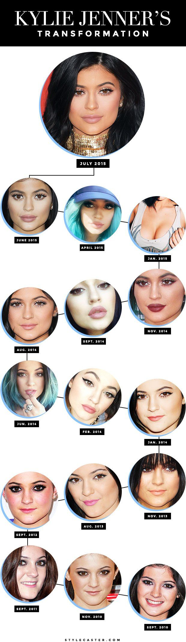 Kylie Jenner's Beauty Evolution and Changing Face | StyleCaster