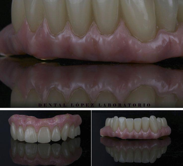 Provisional PMMA con composite Nexco #dental #dentalopez