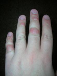Dermatillomania - Dermatillomanie - Skin Picking