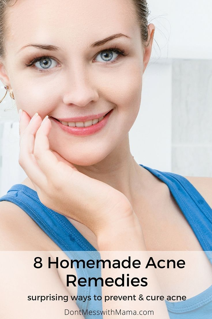 8 Homemade Acne Remedies - surprising ways to get rid of acne without harsh chemicals - DontMesswithMama.com
