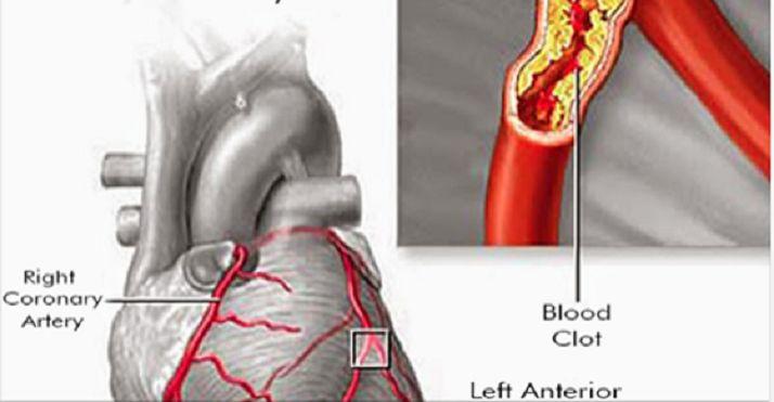 Esta é uma maravilhosa receita natural.Ela tem muitos benefícios.Para começar, é excelente para aumentar a imunidade e limpar as artérias, sendo, por isso, um ótimo preventivo natural contra doenças do coração.Ela ajuda a acelerar o metabolismo.