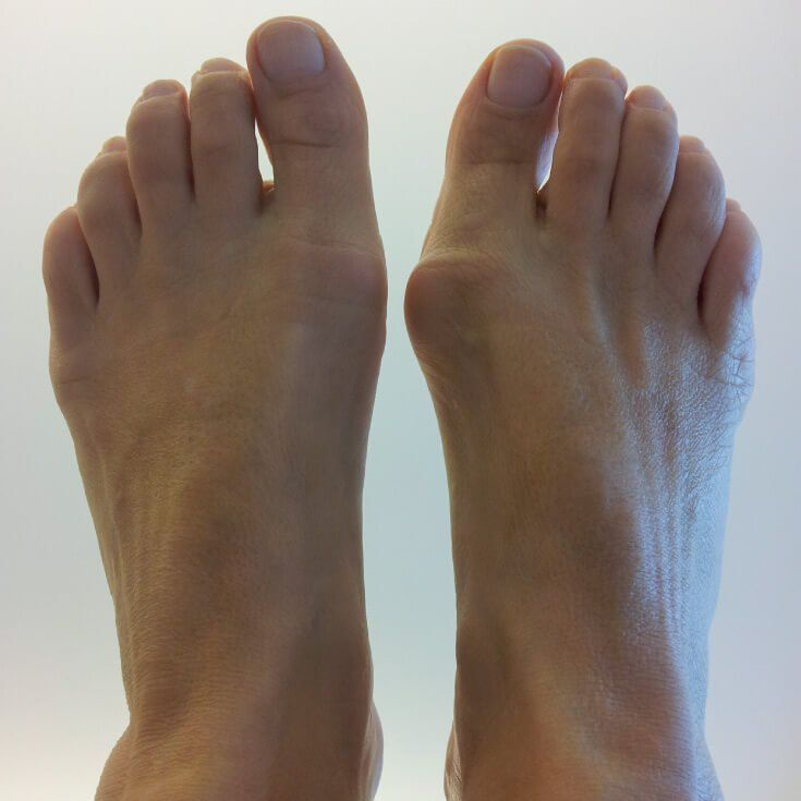 How to get rid of a bunion natural treatments bunion